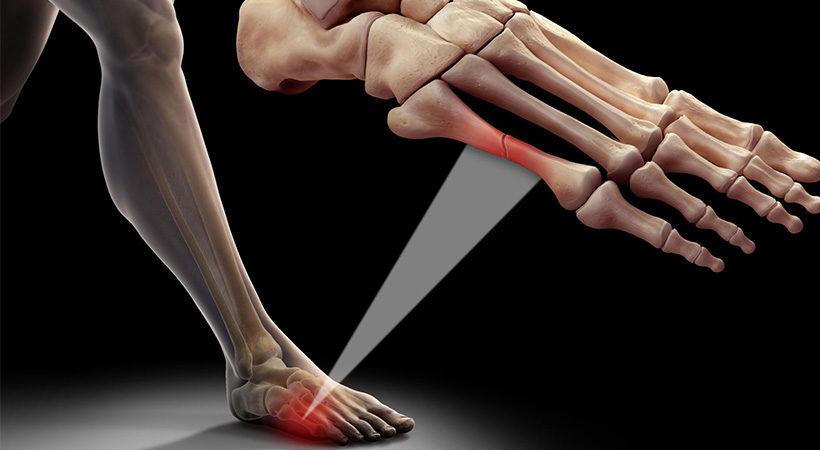 شکستگی انگشت پا